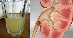 Effective Treatment of Kidney Stones
