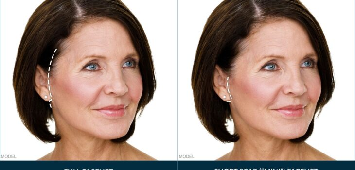 CAN A FACELIFT TAKE YEARS OFF YOUR FACE?