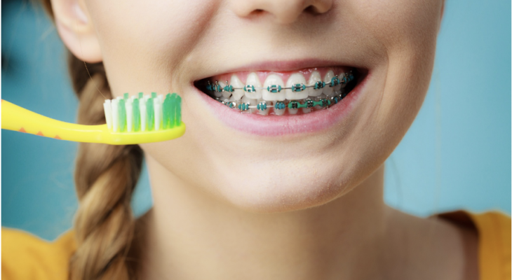3 Types of Braces You Need to Know