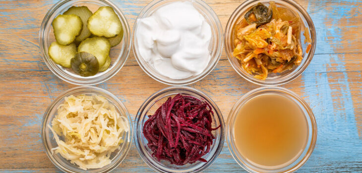 5 Best Probiotic Drinks Available at Whole Foods