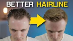 Receding Hairlines in Men: A Complete Guide