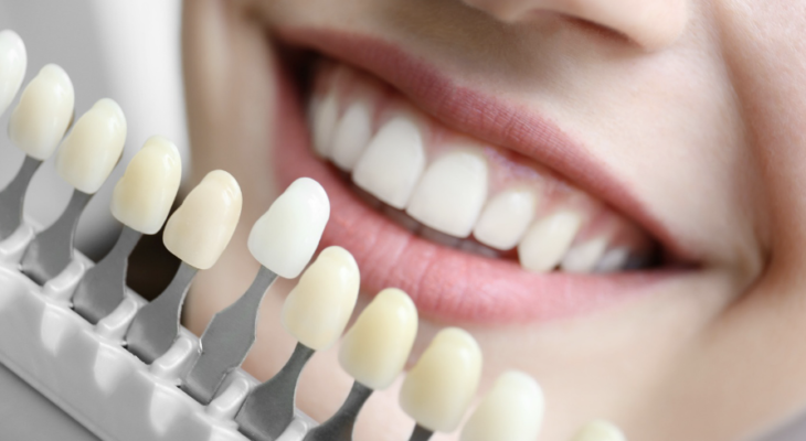 5 Factors to Consider When Choosing a Dental Implant Dentist