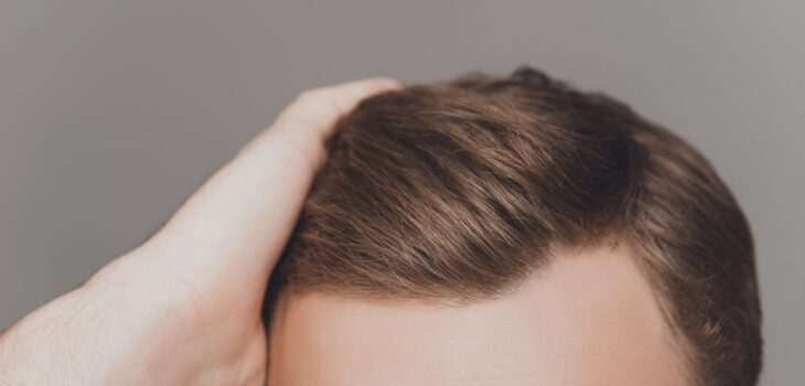 Pros and Cons of Hair Transplant