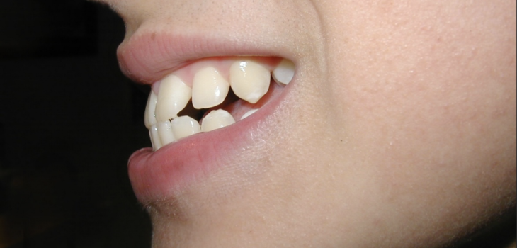 What You Need to Know About Overbite Surgery: A Brief Guide