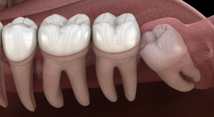 What Age Should You Get Your Wisdom Teeth Removed?